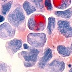 Read more at: Scientists develop new class of cancer drug with potential to treat leukaemia