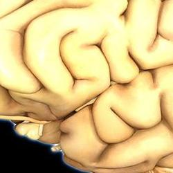 Read more at: Inflammation in the brain linked to several forms of dementia